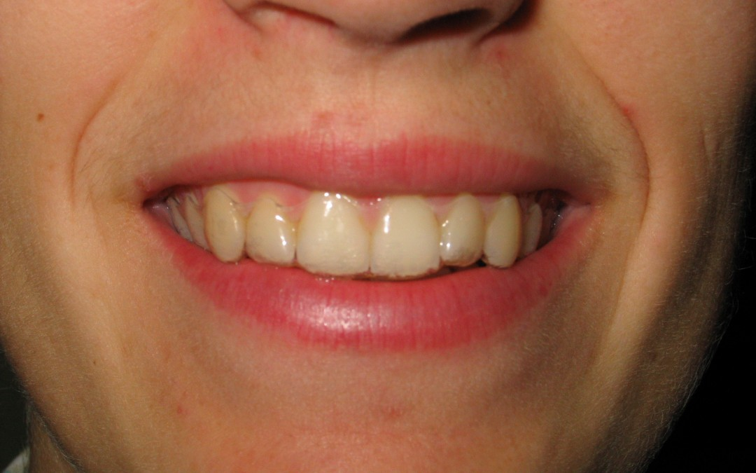 Ortodoncia trasparente: Invisalign