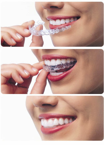 invisalign-pros-and-cons