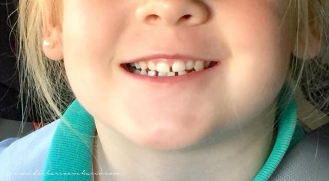 Los dientes de leche: más bocadillos y menos bollos