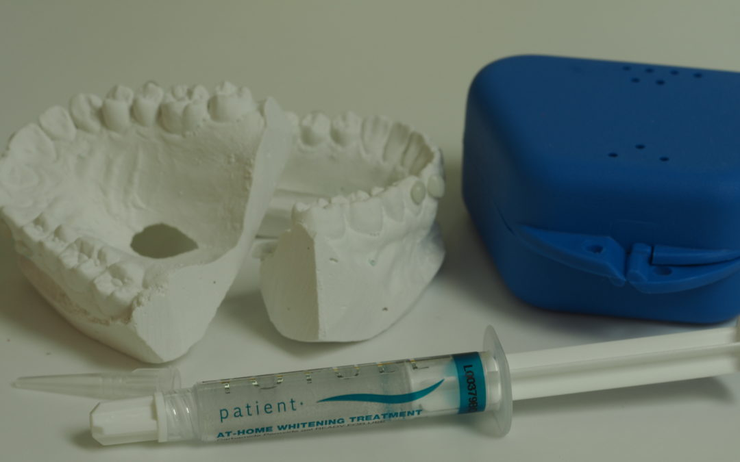 Blanqueamiento dental ¿Daña los dientes?
